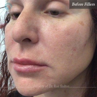 Before Fillers