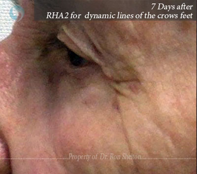 RHA2 for her dynamic lines of the crows feet