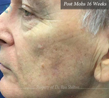 Post MOhs 16weeks on the cheek