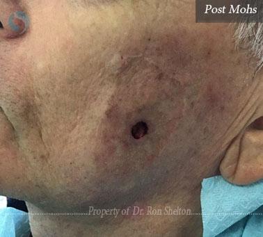 Post mohs surgery on cheek