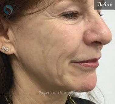 cheeks before ultherapy and sofwave