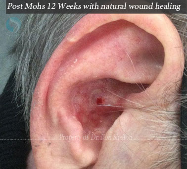 No repair, healed with wound care no graft or flap