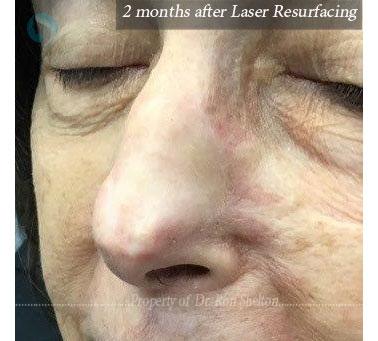2 Months after erbium ablative laser resurfacing
