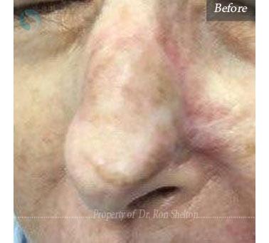 Before Laser Resurfacing on nose