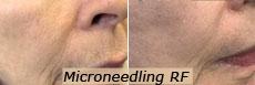Microneedling RF