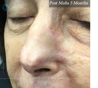 Post Mohs 4 Months on nose