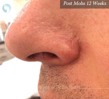 Post Mohs 12 Weeks on the nose