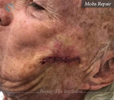 Mohs Repair on the cheek