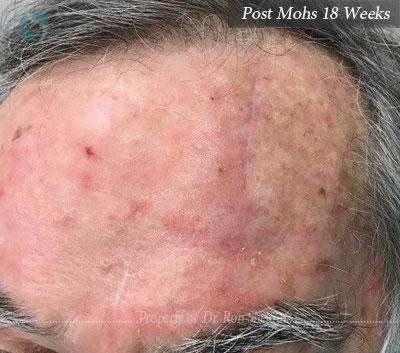 Post Mohs 18 Weeks