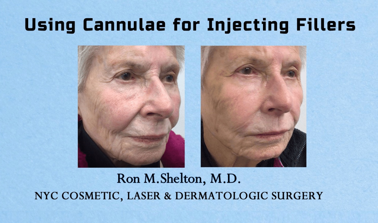 fillers with cannula