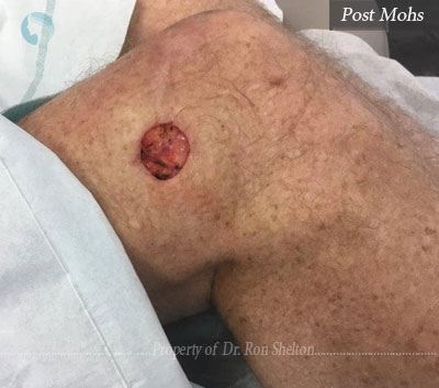 Post Mohs surgery in the leg