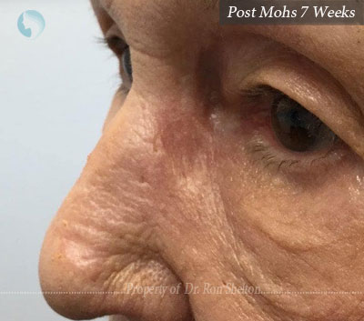 Post Mohs 7 Weeks on the nose