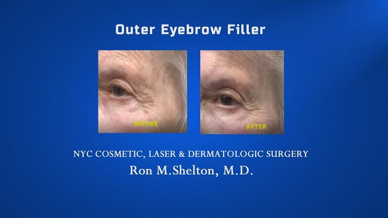 fillers for eyebrow