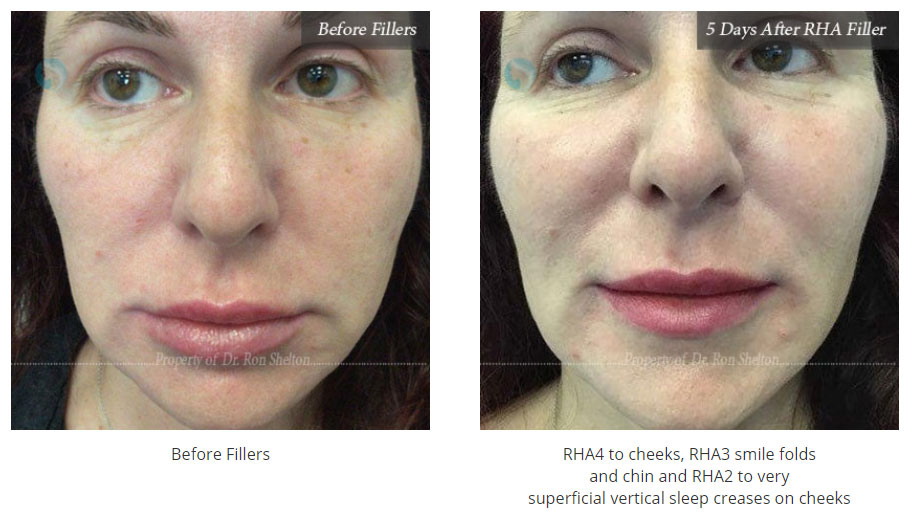 facial-fillers-in-nyc