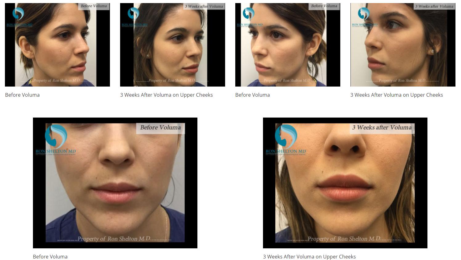 Voluma for face augmentation