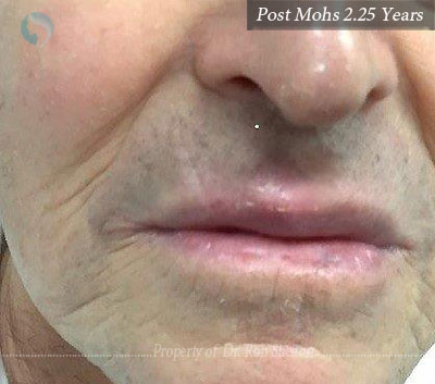 Post Mohs 2.25 Years