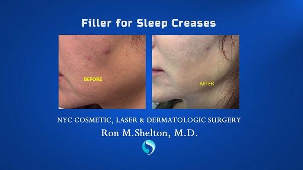 filler for sleep creases