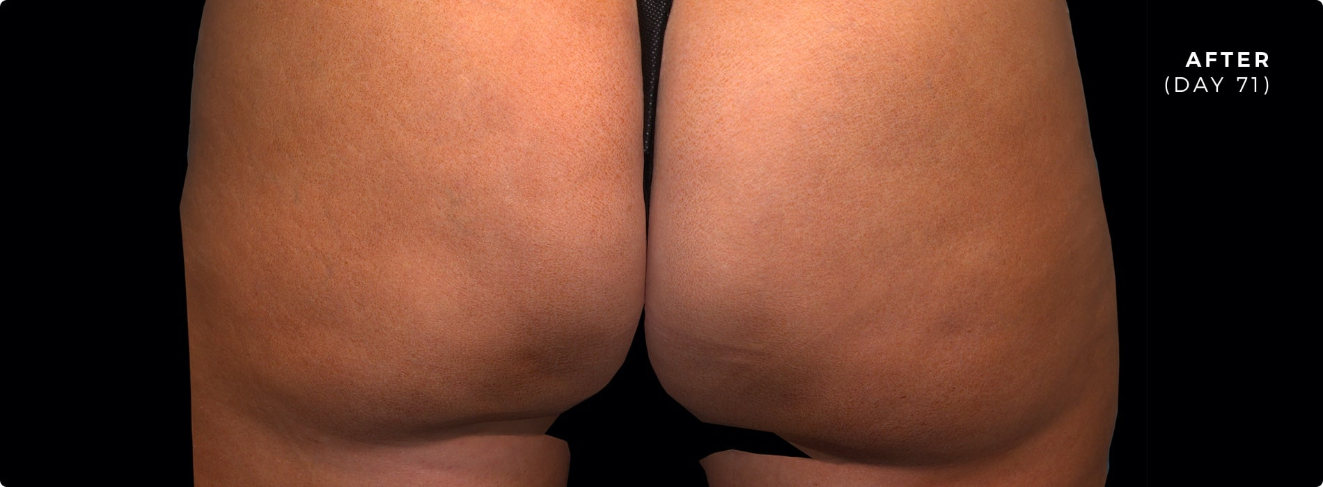 71 days after QWO for cellulite