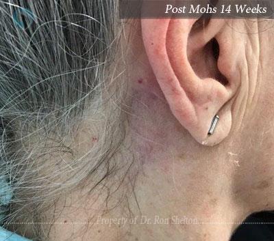 Post Mohs 14 Weeks