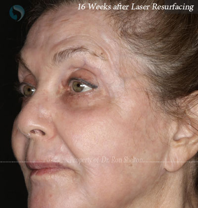 After Laser Resurfacing for laser resurfacing for deep Sun damage and wrinkles