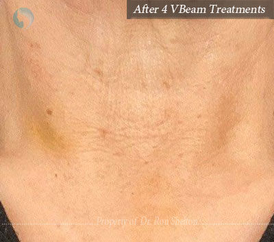 After 4 Treatments of VBeam Laser