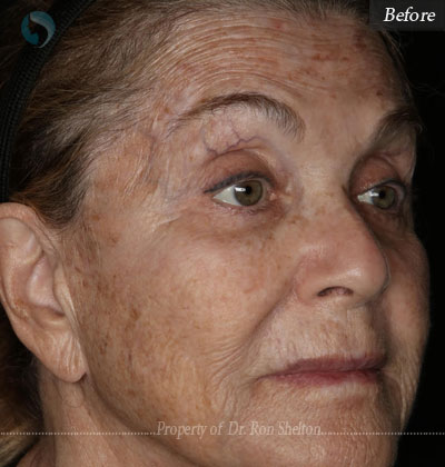 Before laser resurfacing
