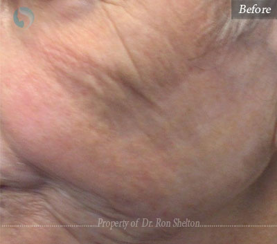 AquaGold microneedling with topical application of dilute Botox and Hyaluronic acid filler to improve texture of the skin.