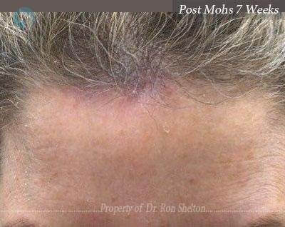 Post Mohs 7 Weeks
