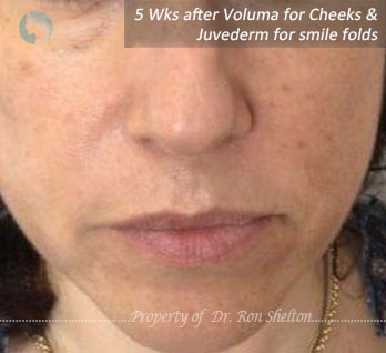 5 Wks after Voluma for cheeks and Juvederm for smile folds