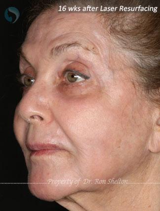 After Laser Resurfacing for laser resurfacing for deep Sun damage and wrinkles