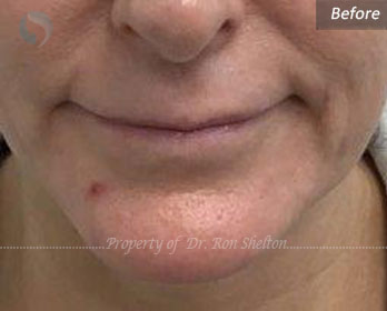 Lips Before Juvederm