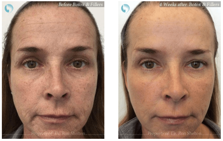 Botox and Filler combination treatment NYC