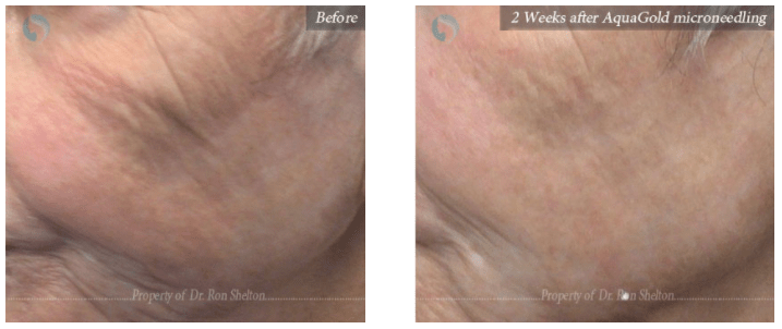 Botox combination treatment in NYC