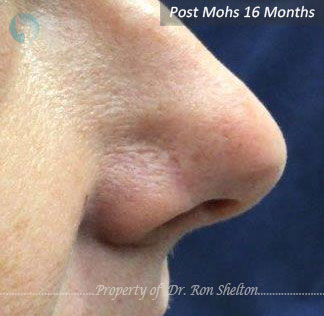Post Mohs 16 Months