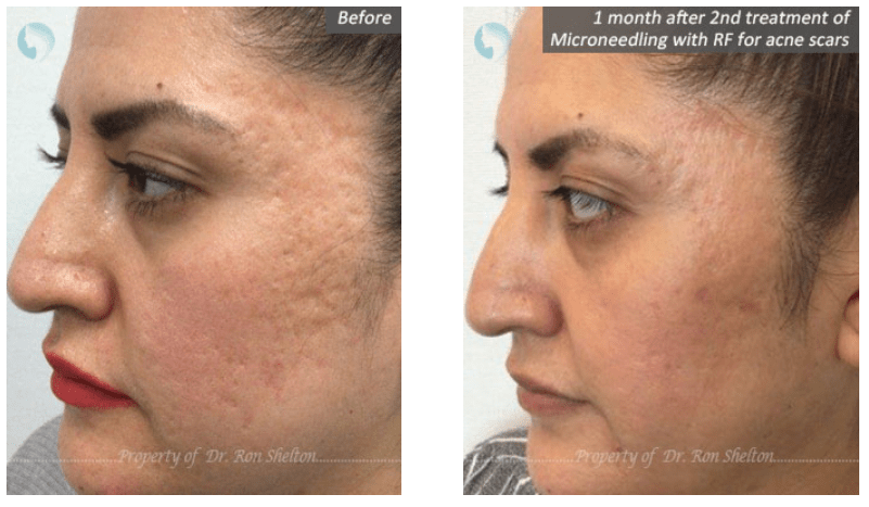 how to remove acne scars in nyc