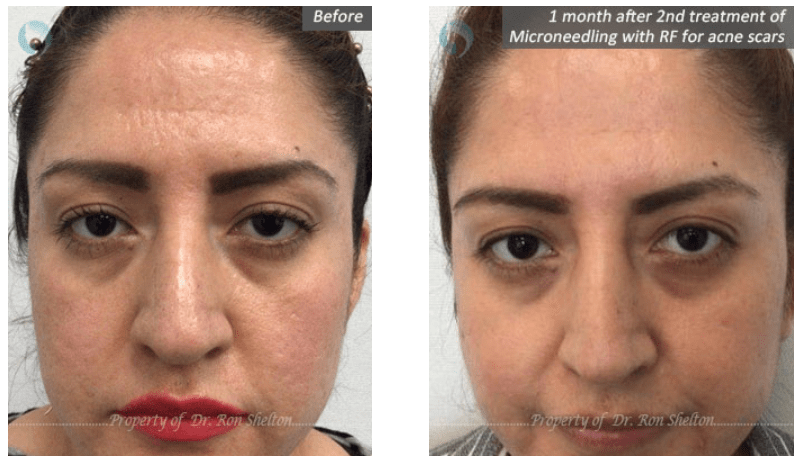 MicroneedlingRF for acne scars