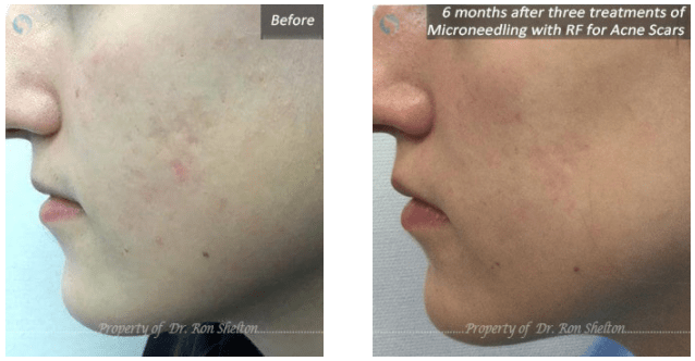 acne scars reduction nyc