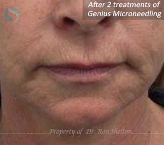 After 2 Treatments of Genius Microneedling