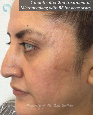 1 month after 2nd treatment of Microneedling with RF for acne scars