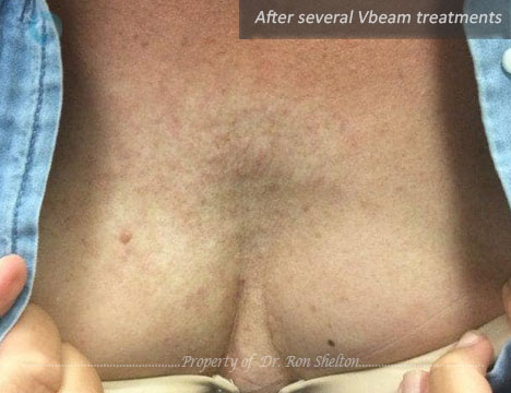 After several VBeam treatments