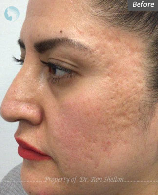 Before Microneedling with RF for Acne scars