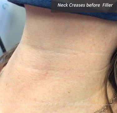 Neck creases before Filler Belotero