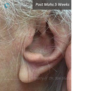 POst Mohs 5 Weeks