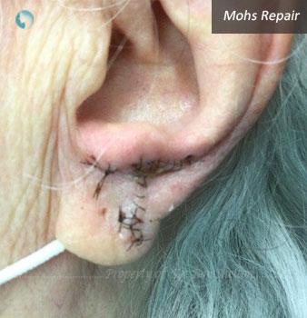 Mohs Repair on ear lobe