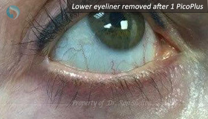 Lower Eyeliner Removed After 1 PicoPlus