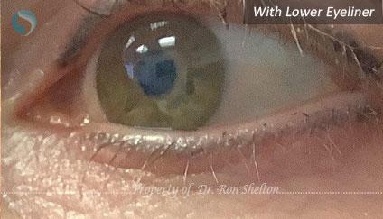 Lower Eyeliner before PicoPlus