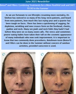 Botox® and Fillers
