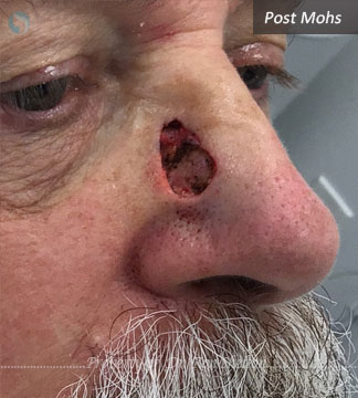 Post Mohs surgery by Dr Ron Shelton