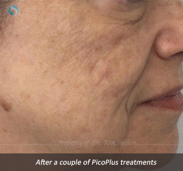 After a couple of PicoPlus treatments