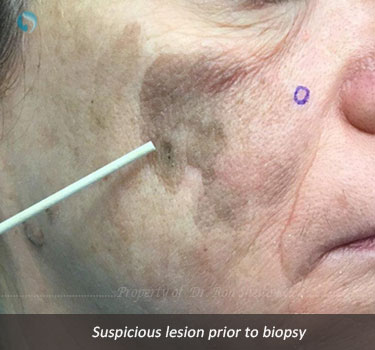 Suspicious lesion prior to biopsy